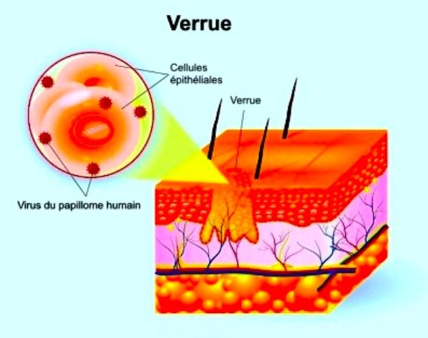 Explication et schéma de la verrue par rapport à la peau
